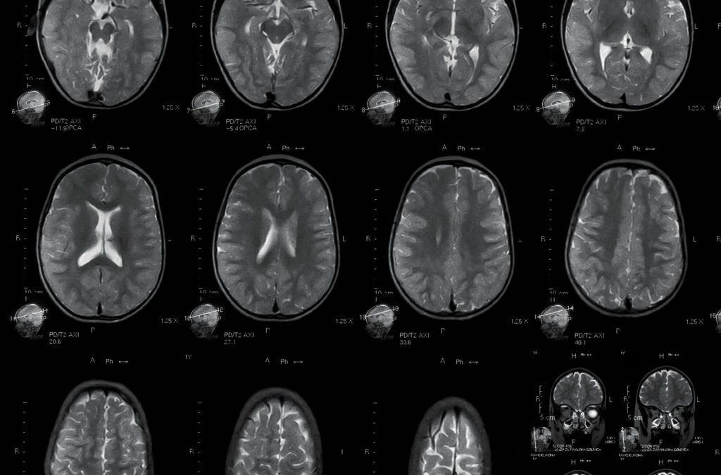 Professor Matilde Inglese – Imaging Multiple Sclerosis: Searching For Patterns In The Brain