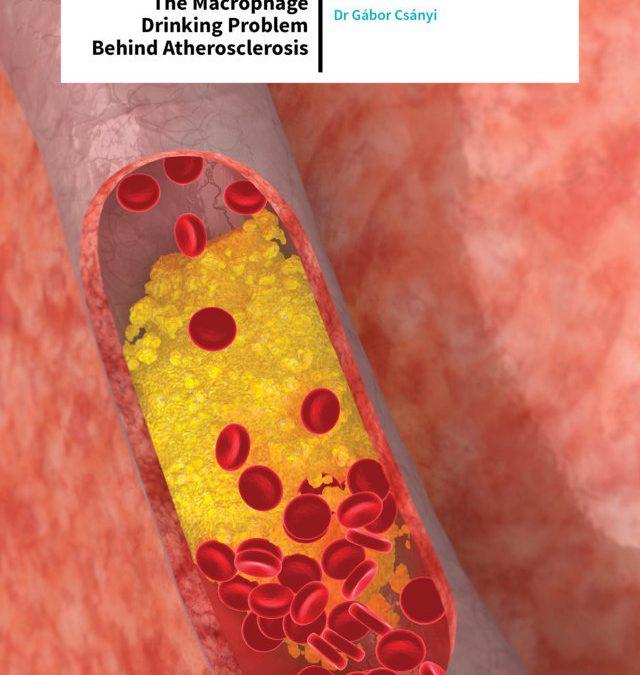 Dr Gábor Csányi – Macropinocytosis: The Macrophage Drinking Problem Behind Atherosclerosis