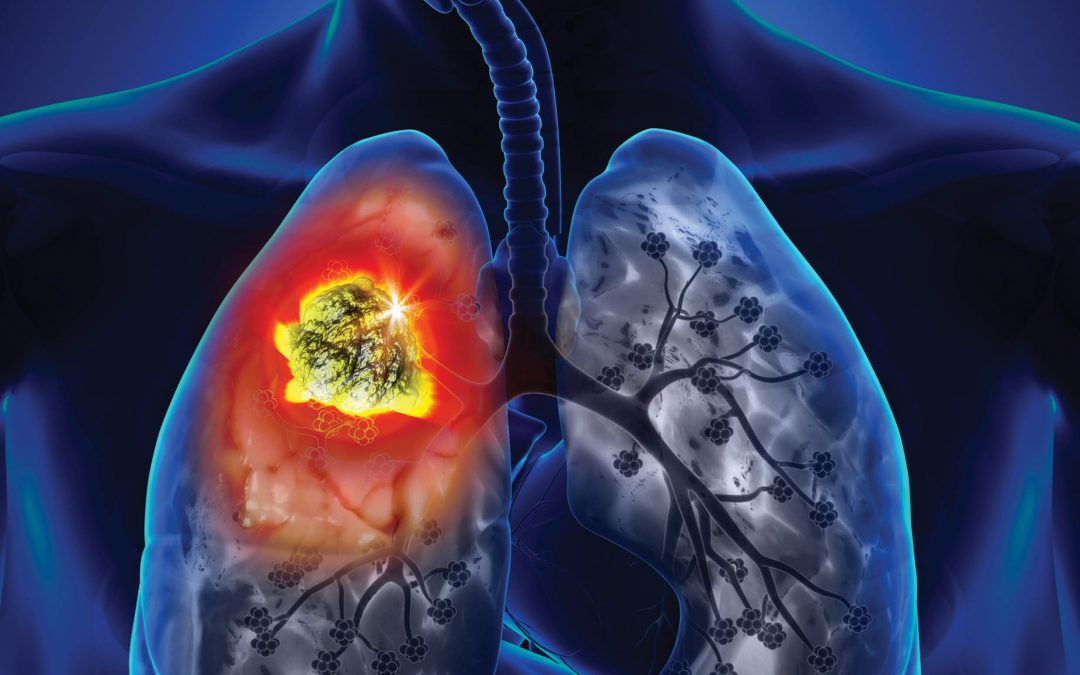 Dr Samantha Meenach – A Three-Dimensional Model of Lung Cancer