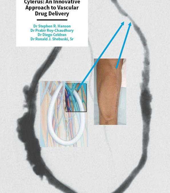Cylerus: An Innovative Approach to Vascular Drug Delivery