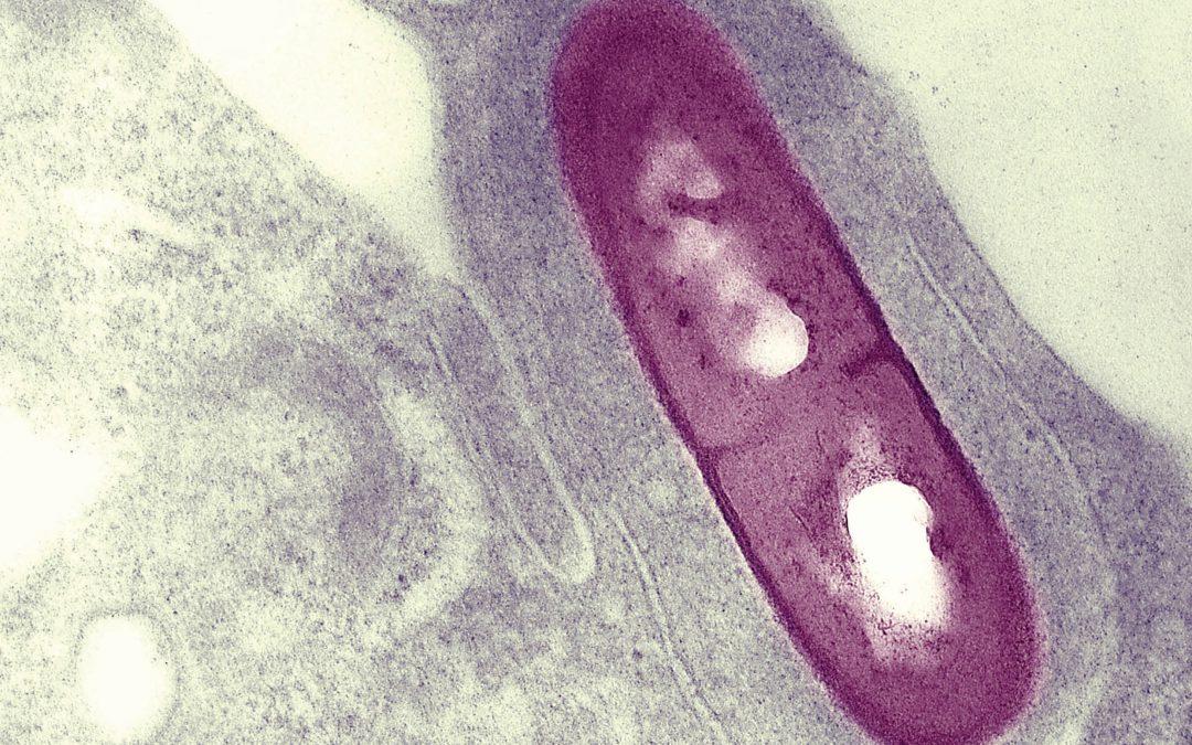 Dr Darren Higgins – Understanding the Pathogenic Mechanisms of Intracellular Bacteria