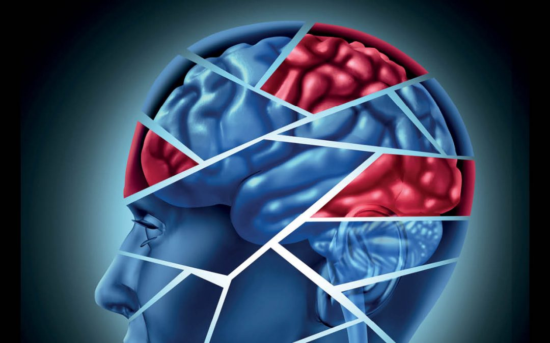 Dr Jack Jallo – Improving Patient Outcomes in Traumatic Brain Injury