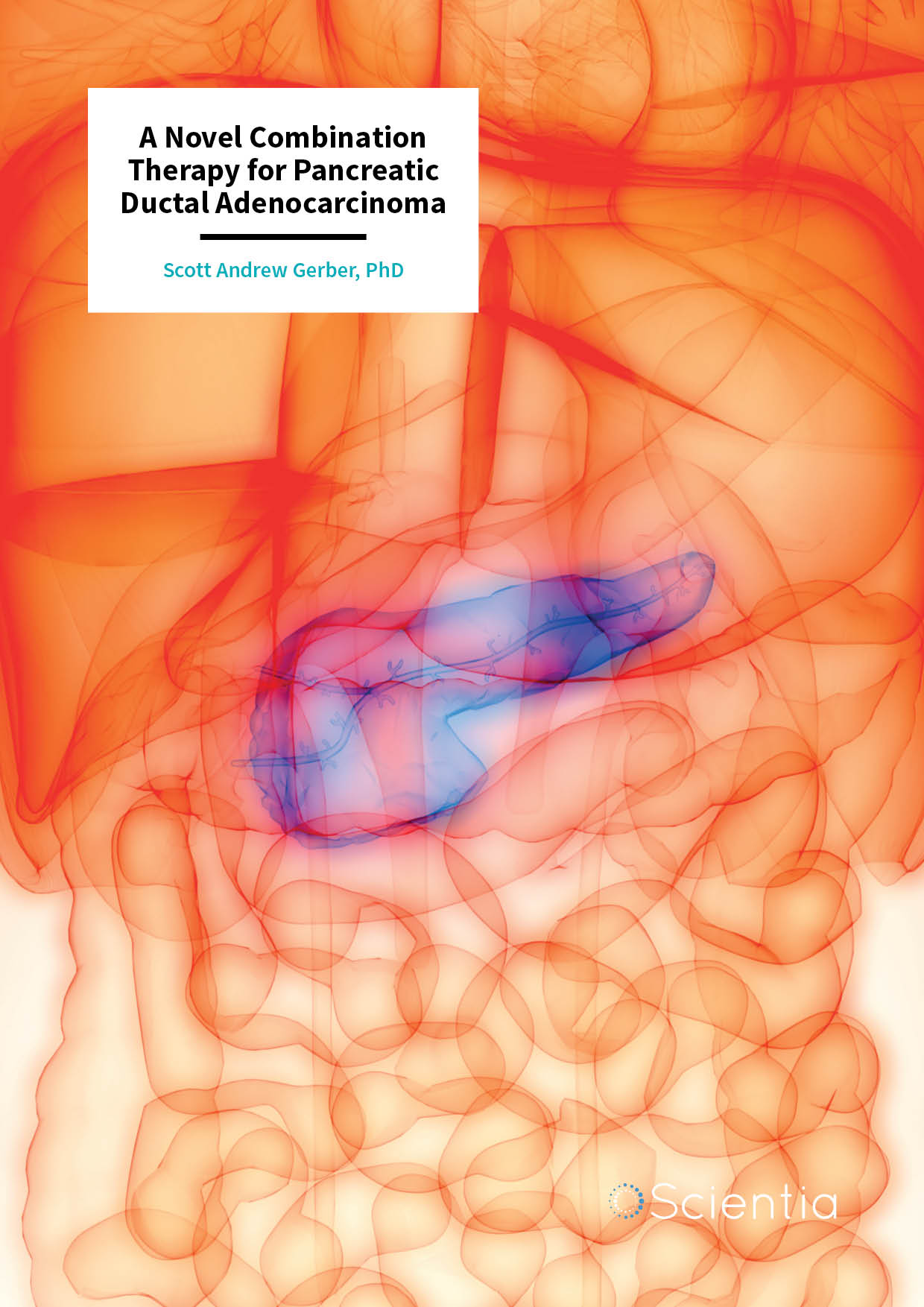 Dr Scott Gerber – A Novel Combination Therapy for Pancreatic Ductal Adenocarcinoma