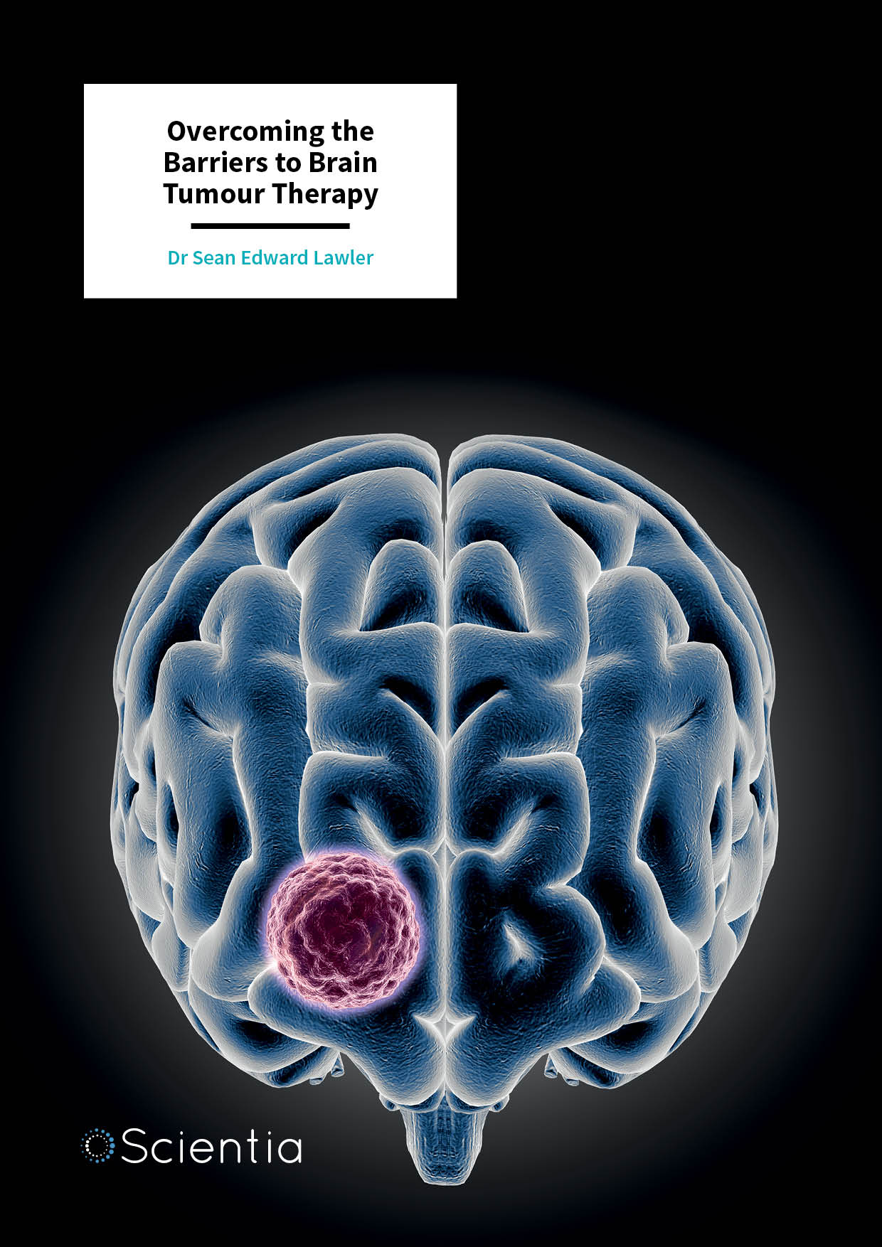 Dr Sean Lawler – Overcoming the Barriers to Brain Tumour Therapy
