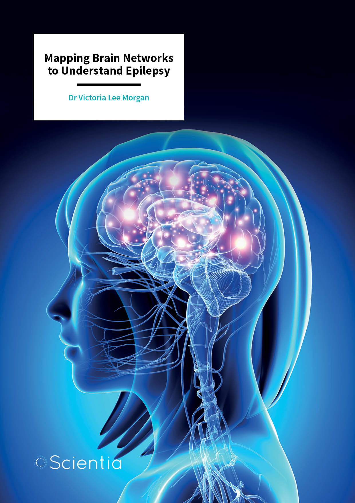 Dr Victoria Morgan – Mapping Brain Networks to Understand Epilepsy
